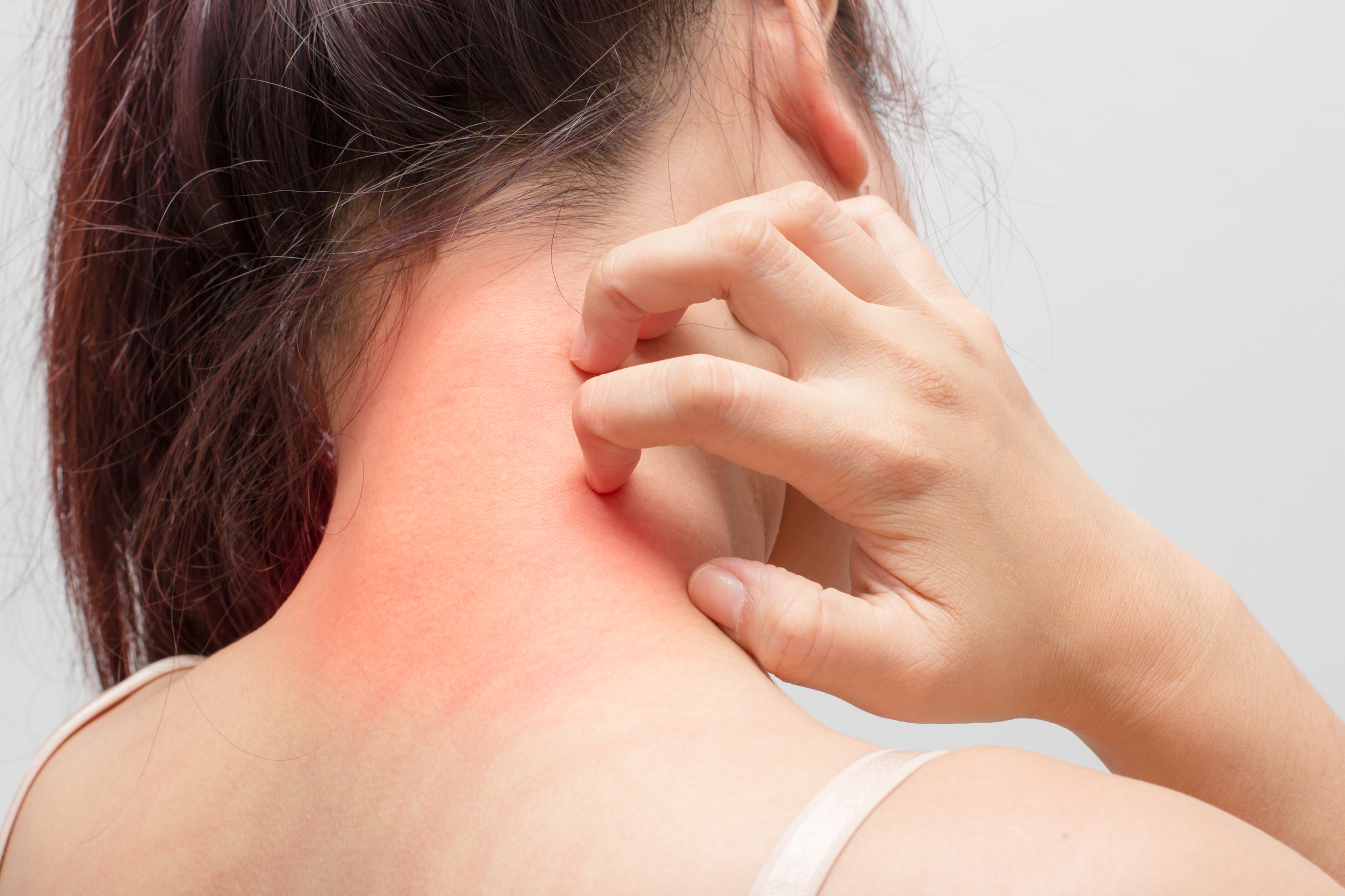 Women scratch the itch with hand ,neck, itching, Concept with Healthcare And Medicine..